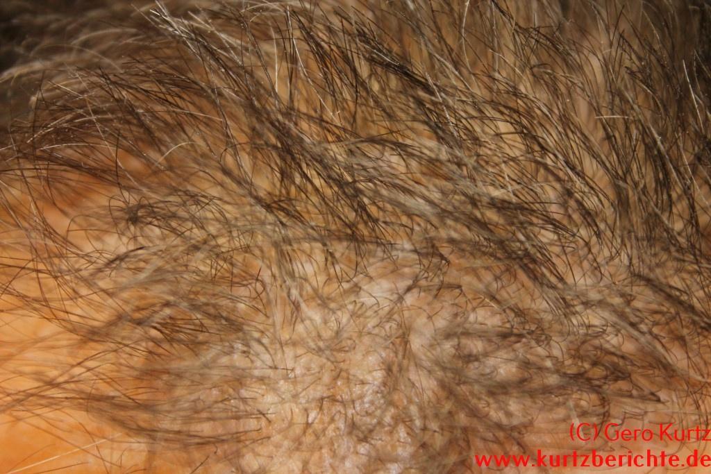 Das Programm gegen den Haarausfall